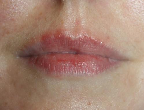 petit bouton au dessus de la lèvre