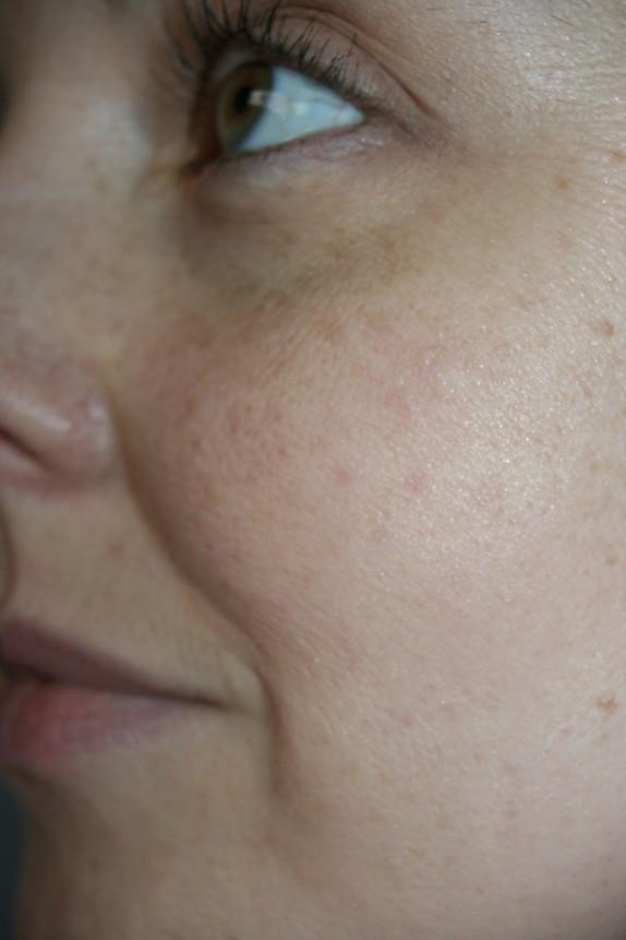gros plan perles peau