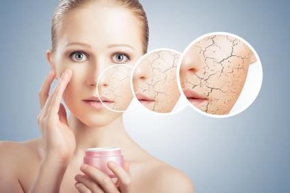 peau sèche