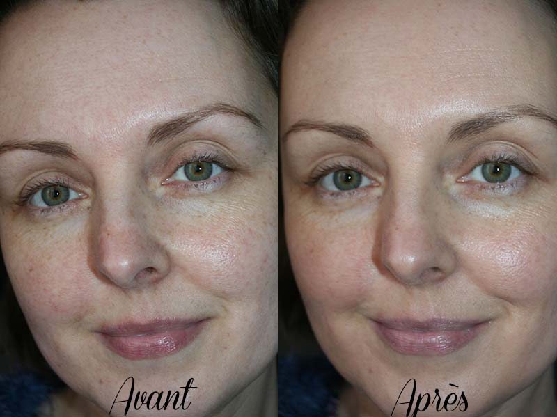 complexion rescue before after