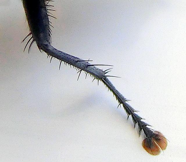 Beauty-tips : La galère des poils sous peau [#Epilation, Tome2]