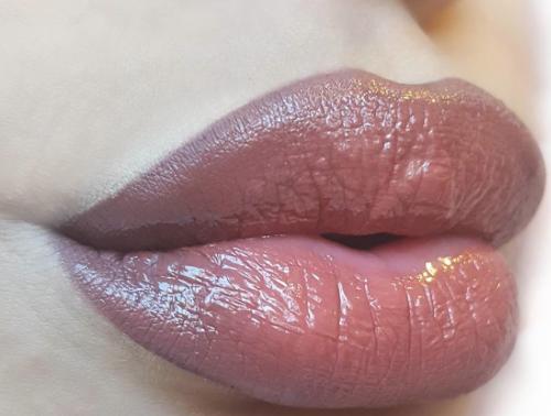 lèvres trop gonflées
